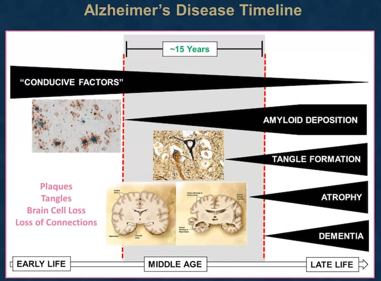 Changes in the brain with Alzheimer's Disease (AD) timeline.