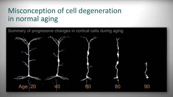 These are cortical neurons. You see the progression of what scientists thought happened to these neurons during the aging process. By the time you get to the example cell from a 90 year old, it would be very shriveled.