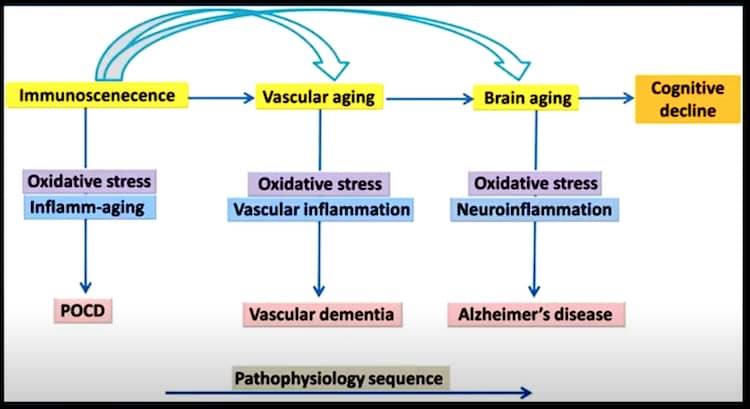Brain healthy foods reduce risk of Alzheimer's and dementia. Effects of food in brain function.