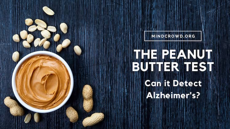 Most Alzheimer's patients do not lose their sense of smell but some do. The loss of sense of smell is called anosmia. So, can the peanut butter test detect Alzheimer's? Click to find the answer.
